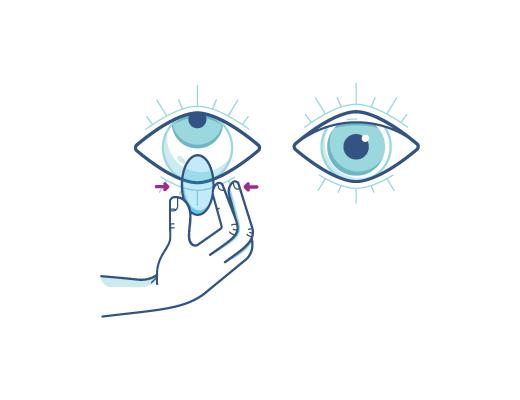 Apretando suavemente el lente para quitarte el lente de contacto